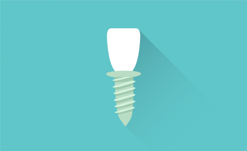 Dental Implants - Markham Scarborough - Southeast Dental