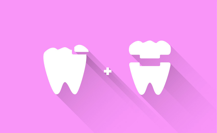 Inlays and Onlays - Markham Scarborough - Southeast Dental