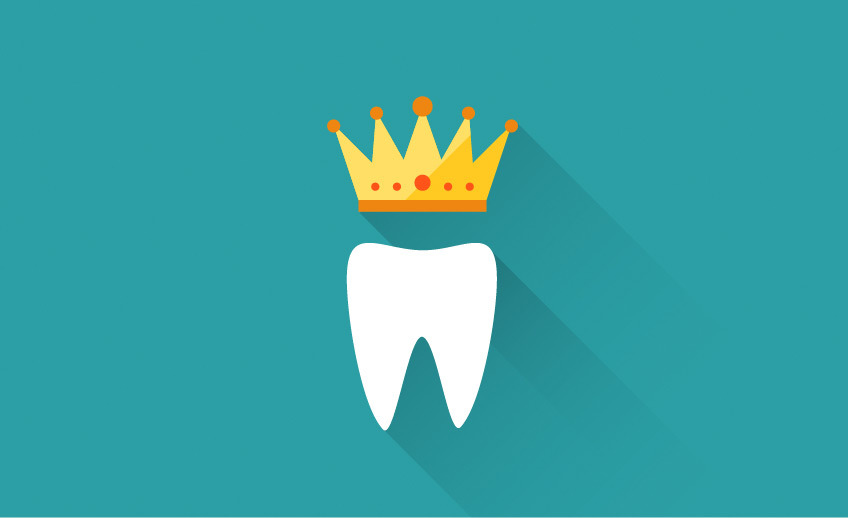 Porcelain Crowns - Markham Scarborough - Southeast Dental