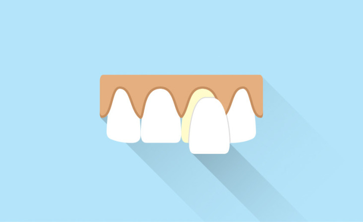Porcelain Veneers - Markham Scarborough - Southeast Dental