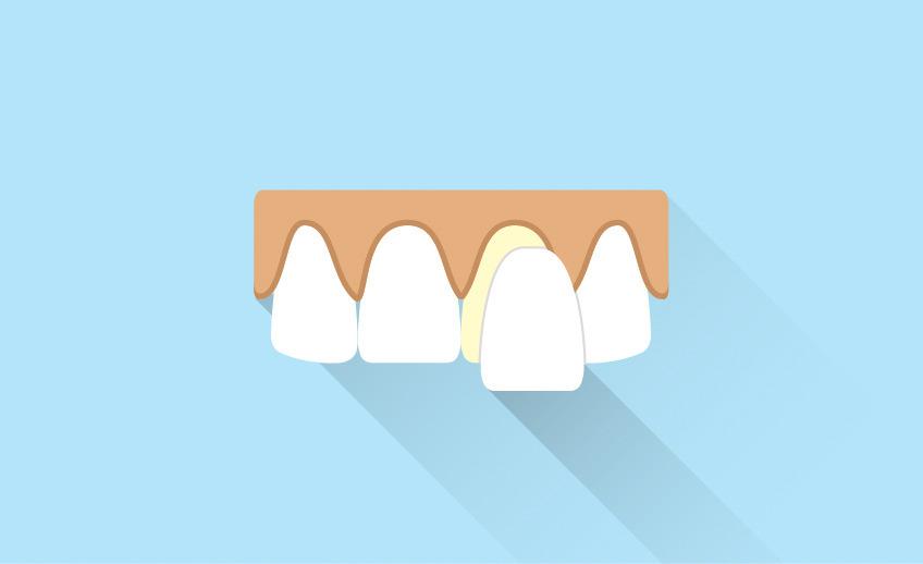 Porcelain Veneers - Markham Scarborough - Southeast Dental